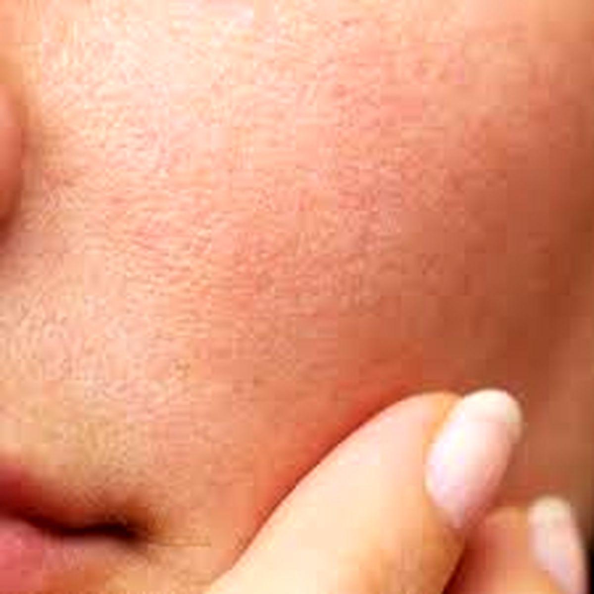 اگر پوست چرب دارید حتما این موارد را بخوانید