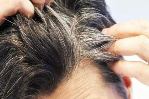 چگونه از سفیدشدن موها جلوگیری کنیم؟