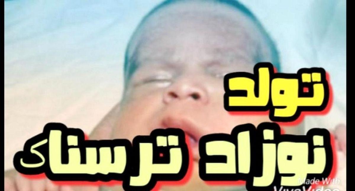 عکس ترسناک از تولد نوزادی با 2 سر و 3 دست! + جزئیات عجیب