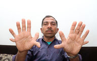 تصاویر/ مرد هندی که ۲۸ انگشت دارد!