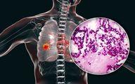 ۴ نشانه عجیب سرطان ریه که از آن بی خبرید