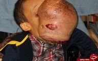 جراحی تومور عجیب صورت پسر 14 +تصاویر
