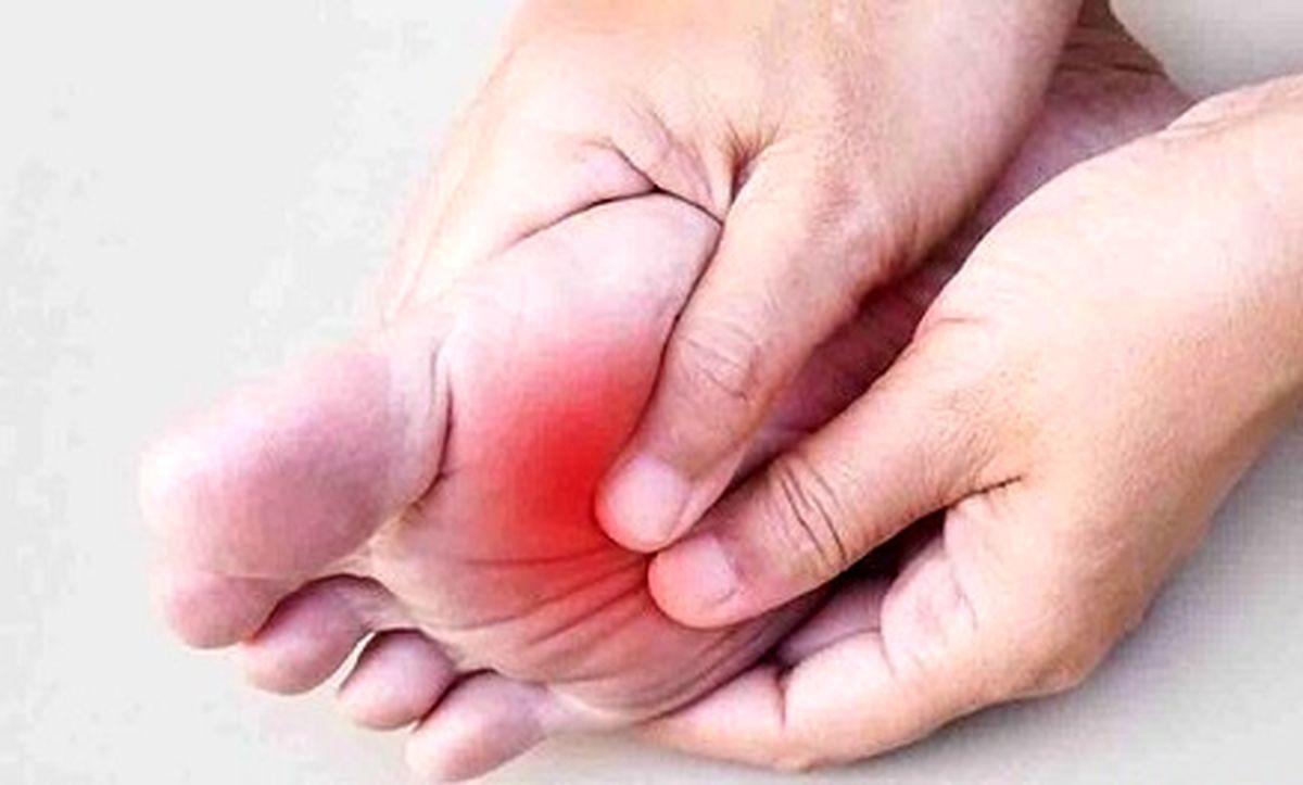 علت داغ شدن کف پا چیست؟