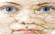 7 عادت روزمره که پوست شما را خشک می کند